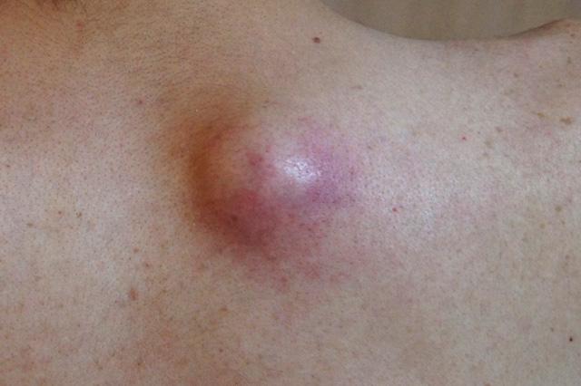 真っ赤に腫れた粉瘤(アテローム)