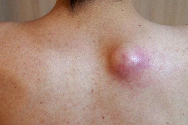 肩の粉瘤(アテローム)